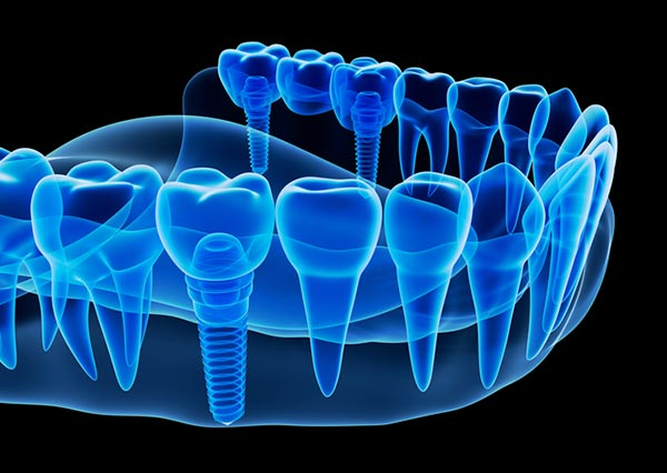 Rendered image of dental implants from Medhat Dental Excellence in Chicago, IL