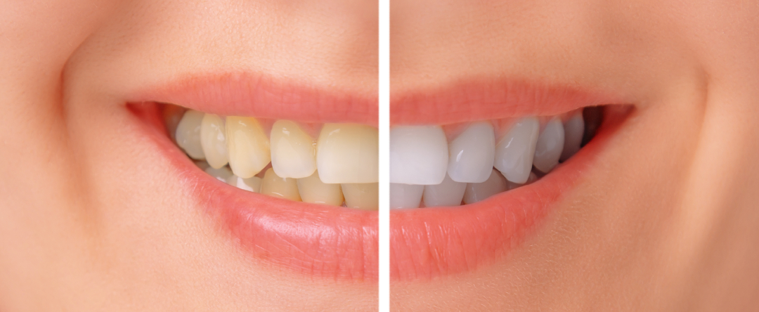 Example of Teeth Whitening in Chicago, IL