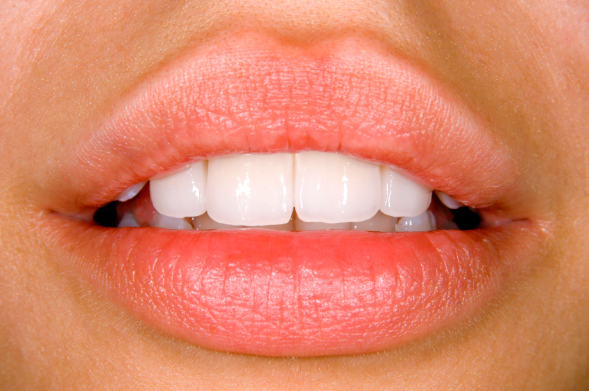 Teeth Veneers Chicago, IL, offered by Medhat Dental Excellence