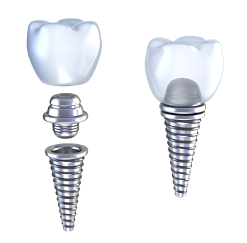 Dental Implants at Medhat Dental Excellence and Artistic Smiles Family Dental Care